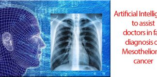 The power of AI Technology to help prevent and treat Mesothelioma cancer